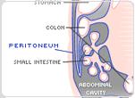 peritoneal_mesothelioma